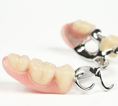 Prothèses fixes sur dents naturelles, Namur